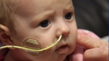One-month-old Molly Campbell was diagnosed with a rare form of leukemia on Dec. 24, 2010.