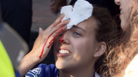 Some people suffered injuries in the Stanley Cup riots in downtown Vancouver. June 15, 2011. (CTV)