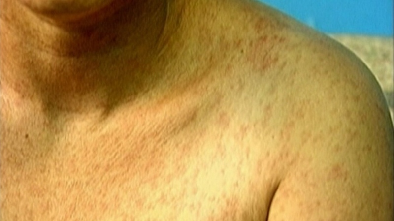 A measles sufferer is seen in this undated file photo. The infection often appears as a rash two or three days after the onset of cold-like symptoms and red, sore eyes. (CTV)
