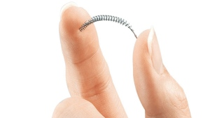 This product image provided by Bayer Healthcare Pharmaceuticals, Inc. shows the birth control implant called Essure.  (Bayer Healthcare Pharmaceuticals, Inc. via AP)