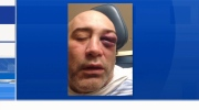 A father alleges he was violently assaulted in front of his teen stepchild at the PNE Saturday night. (Provided)