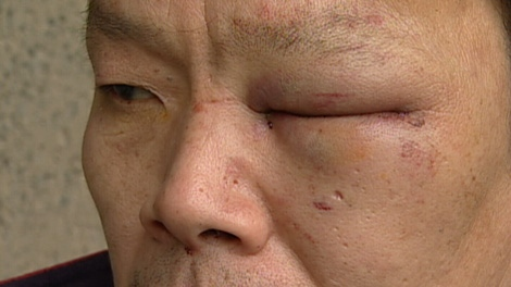 Yao Wei Wu suffered a swollen eye Thursday after Vancouver police mistakenly arrested him. Jan. 21, 2010. (CTV)